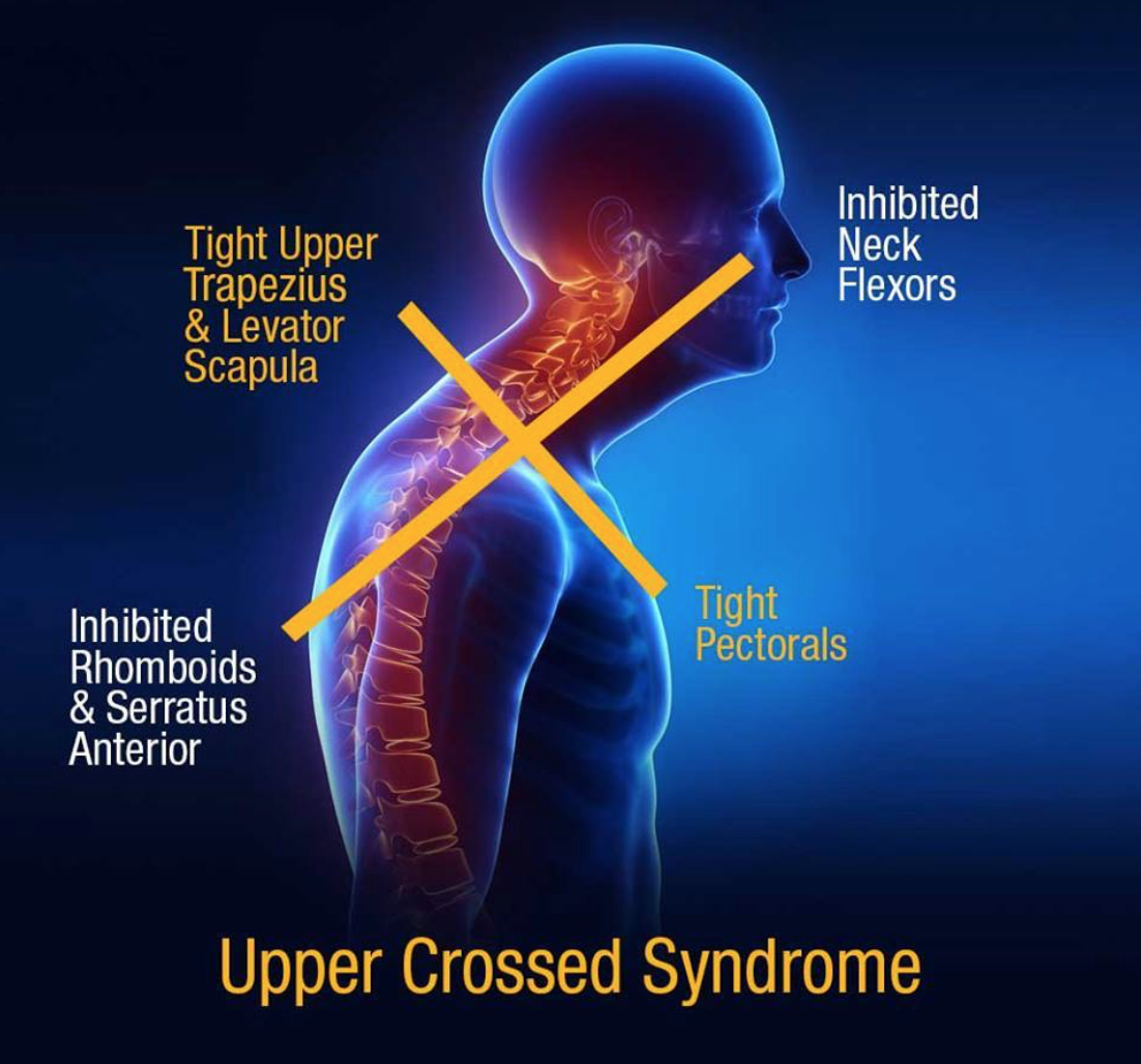 upper cross syndrome Learn how upper crossed syndrome is diagnosed and treated, including helpful exercises.